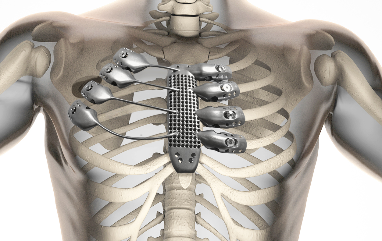 3D Yazıcı ile Kanser Hastasına Titanyum Göğüs Kafesi Yapıldı