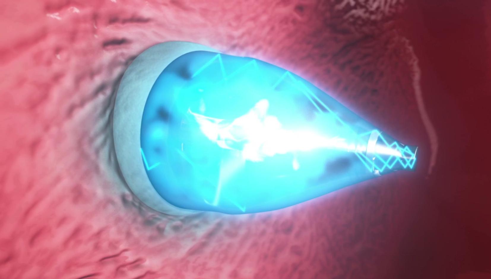 UltraViolet Umut Işığı : Kalp Hastaları Dikkat!