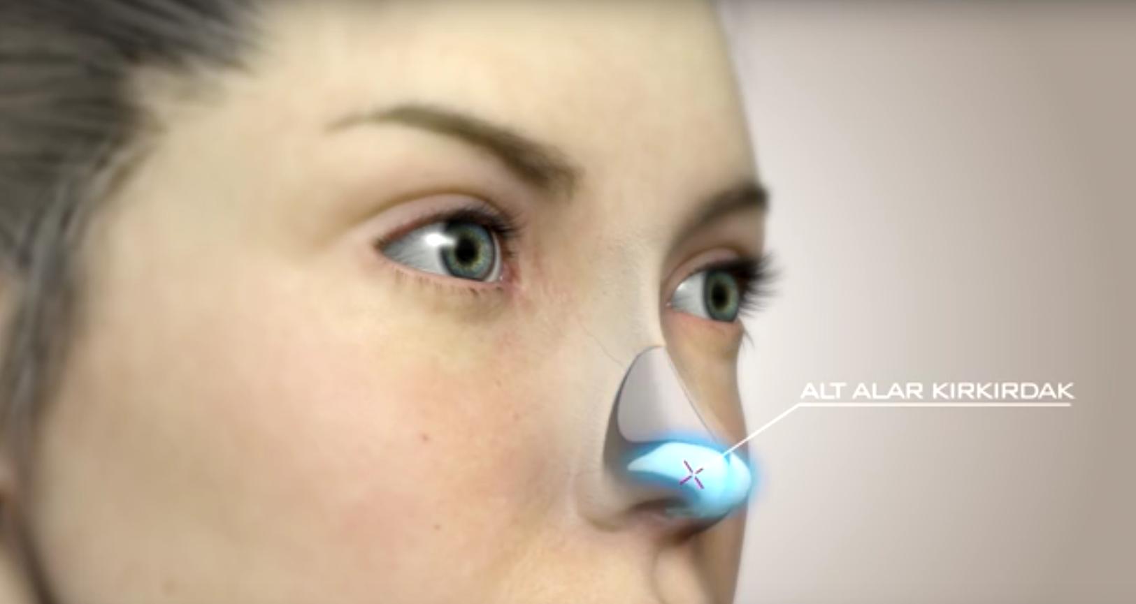 Burun Estetiğinde 3D Tasarım Uygulamaları, Rinoplasti 3D Görüntüleme