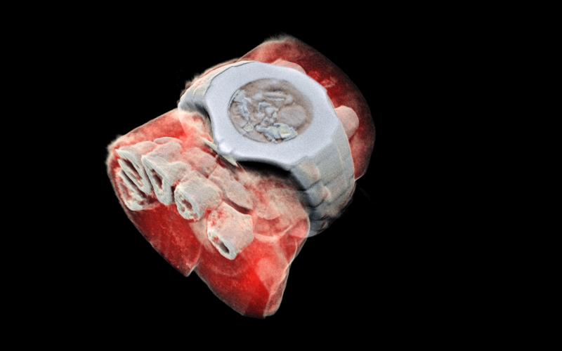 Bilim Adamları Dünyanın ilk 3 Boyutlu Renkli Röntgenini Geliştirdi
